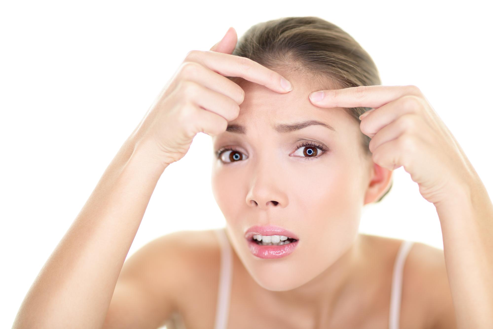 Acne Spot Pimple Skin Care Girl And Skin Problem
